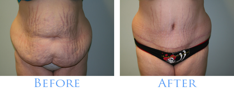Before and After Tummy Tuck Images