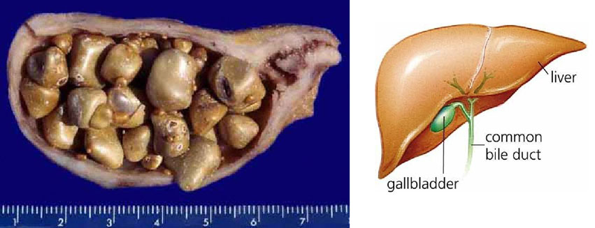 Gallstones and Gallbladder Anatomy